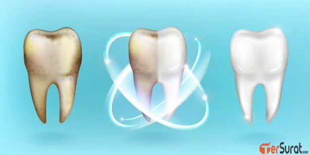5 masalah gigi yang paling umum terjadi